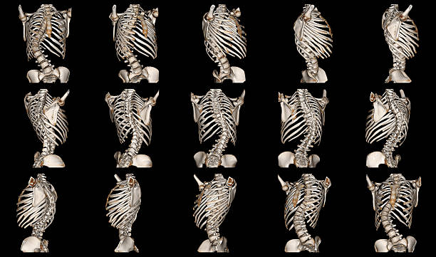 Scoliosis Scoliosis is a medical condition in which a person's spine is curved from side to side intercostal space stock pictures, royalty-free photos & images