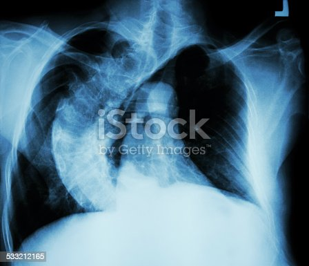 istock Scoliosis ( crooked spine ) 533212165
