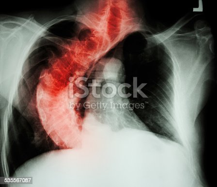 istock Scoliosis ( crooked spine ) 535567087