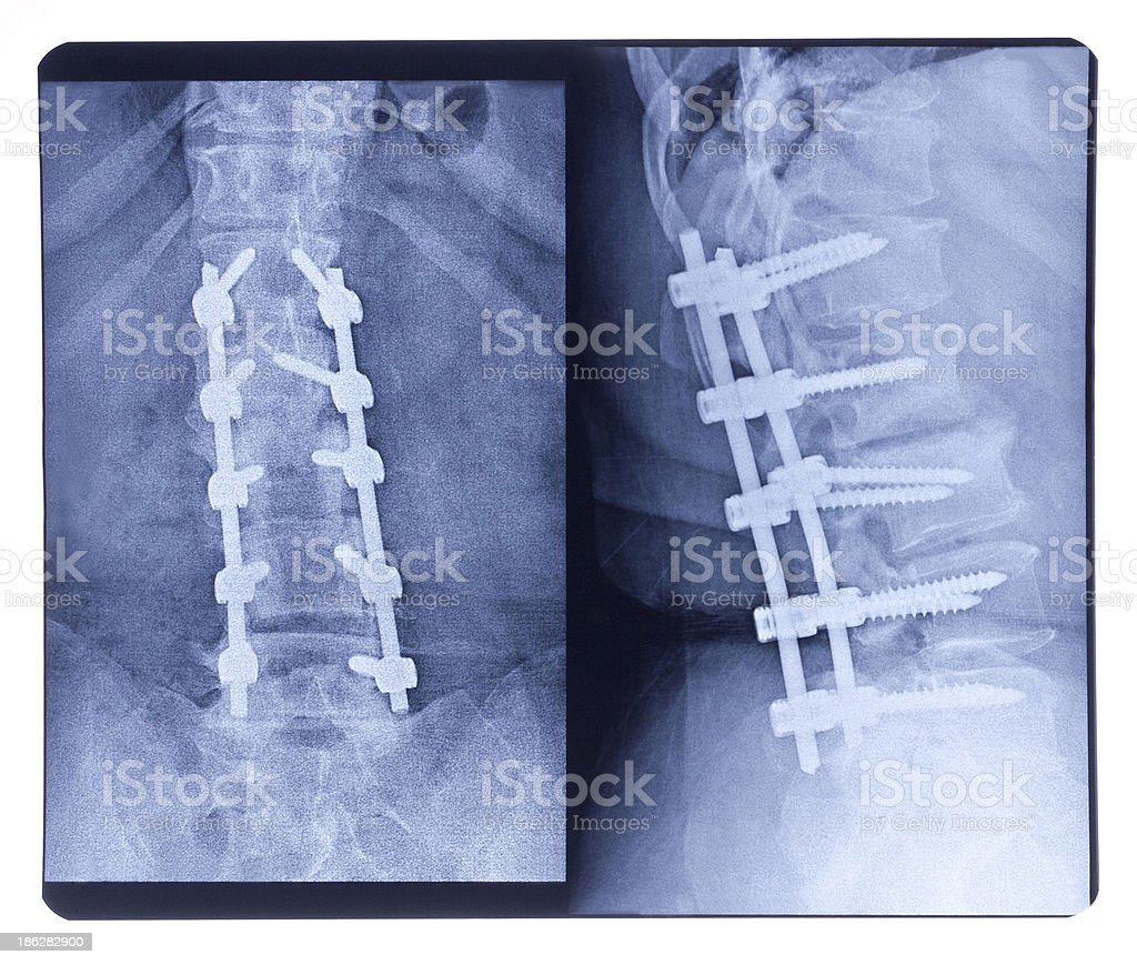 Scoliosis, X-ray royalty-free stock photo