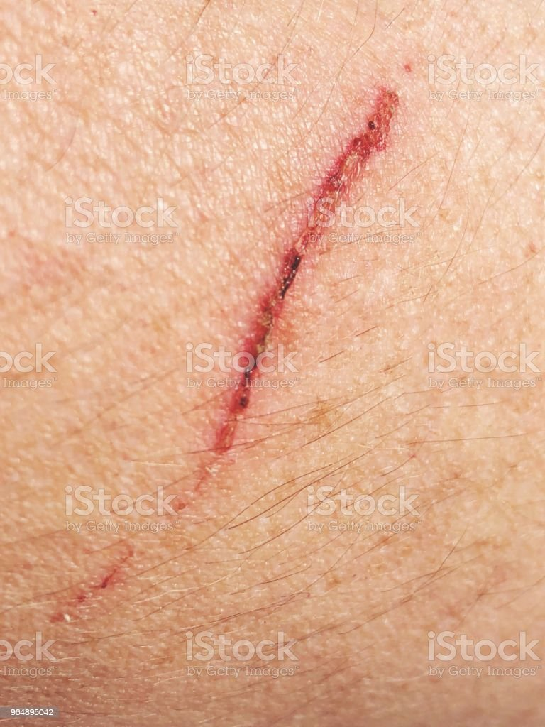 Scratch on skin royalty-free stock photo