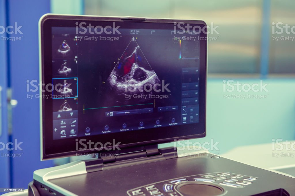 Screening Examinations. Heart ultrasound image on computer screen. Selective focus, Space for text. – zdjęcie
