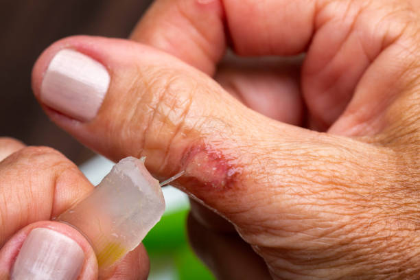 Second degree burn on woman hand finger with aloe vera gel treatment for pain relief stock photo