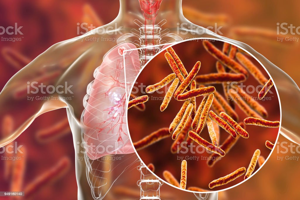 Secondary tuberculosis in lungs and close-up view of Mycobacterium tuberculosis bacteria stock photo
