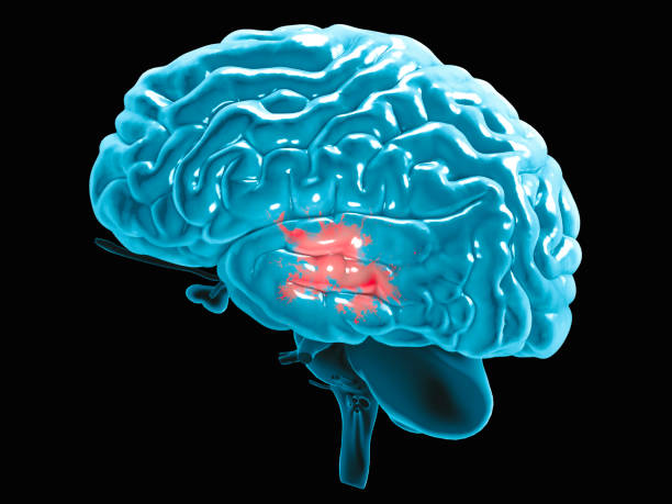 Section of a brain seen in profile, parts of the brain. Degenerative diseases, Parkinson, synapses, neurons, Alzheimer's stock photo