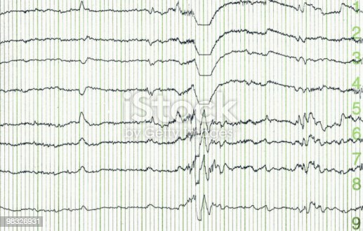 istock Selection of activity readings from Electroencephalogram 98326931