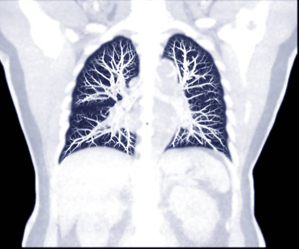 Selektiver Fokus der CT Chest Coronal MIP Ansicht. – Foto