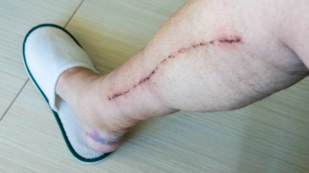 selective focus of male human leg with scar from cardiac surgery of coronary artery disease - open wounds stock photos and pictures