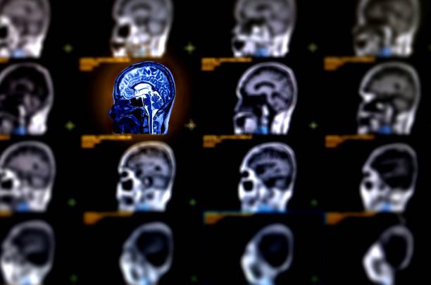 Selektiver Fokus der MRT Gehirn sagittal Ebene für eine Vielzahl von Bedingungen des Gehirns wie Zysten zu erkennen, Tumoren, Blutungen, Schwellungen, Entwicklungs- und strukturelle Anomalien oder Infektionen . – Foto