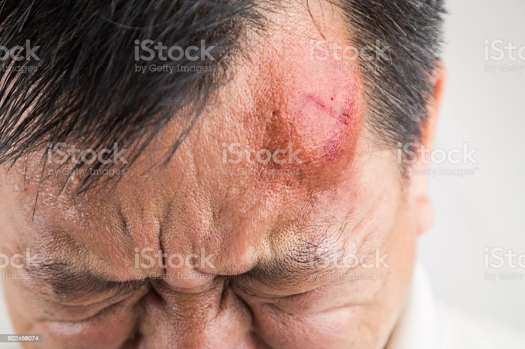 Selective focus  on painful red swollen forehead injury royalty-free stock photo