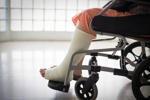 Senior adult leg injury sitting Senior adult leg injury sitting on wheelchair with plaster foot. plaster stock pictures, royalty-free photos & images