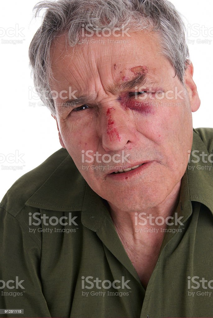 Senior Gentleman with Injuries in his Face stock photo