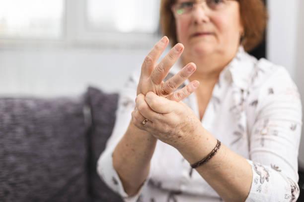 Senior lady massaging hand suffering from rheumatoid arthritis. Woman with osteoarthritis stock photo
