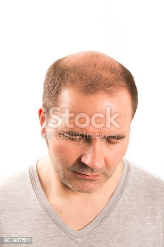1134770826istockphoto Senior man and hair loss issue 601907524