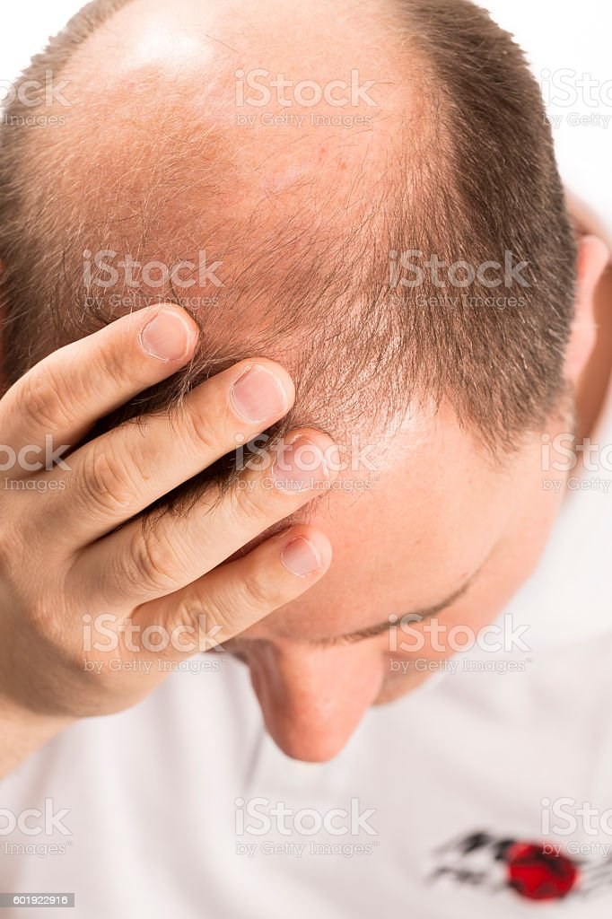 Senior man and hair loss issue stock photo