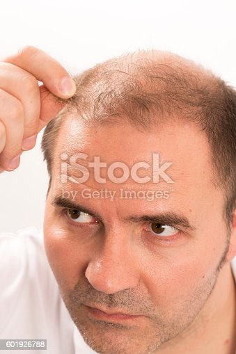 1134770826istockphoto Senior man and hair loss issue 601926788