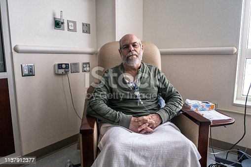 A real life, real person senior adult man outpatient cancer patient is alert, but tired and bored. He's sitting resting comfortably while chemotherapy IV drip medicine is administered through a tangled array of medical equipment through a subcutaneous intravenous chemo access port temporarily embedded into his upper chest. The plastic tubes, clamps, connectors, caps and off-camera drip bags are attached during each two hour on-site session at this medical hospital clinic. The embedded access port stays in place throughout his three month bi-weekly chemotherapy regimen. Another day in the life of a cancer patient. Part of a