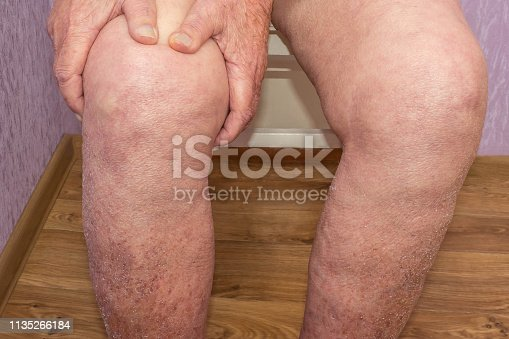 1133511905istockphoto Senior man holding the knee with pain. Collage. Concept of abstract pain and despair. 1135266184