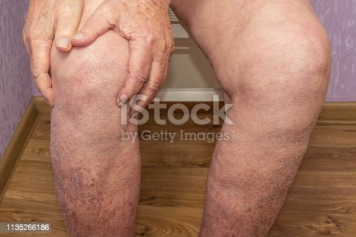 1133511905istockphoto Senior man holding the knee with pain. Collage. Concept of abstract pain and despair. 1135266186