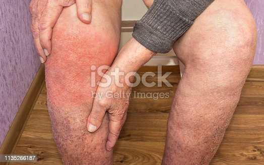 1133511905istockphoto Senior man holding the knee with pain. Collage. Concept of abstract pain and despair. 1135266187