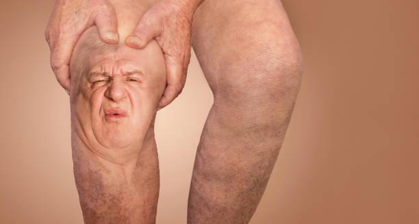 Seniorenmensch hält das Knie mit Schmerzen. die Collage. Konzept des abstrakten Schmerzes und der Verzweiflung. – Foto