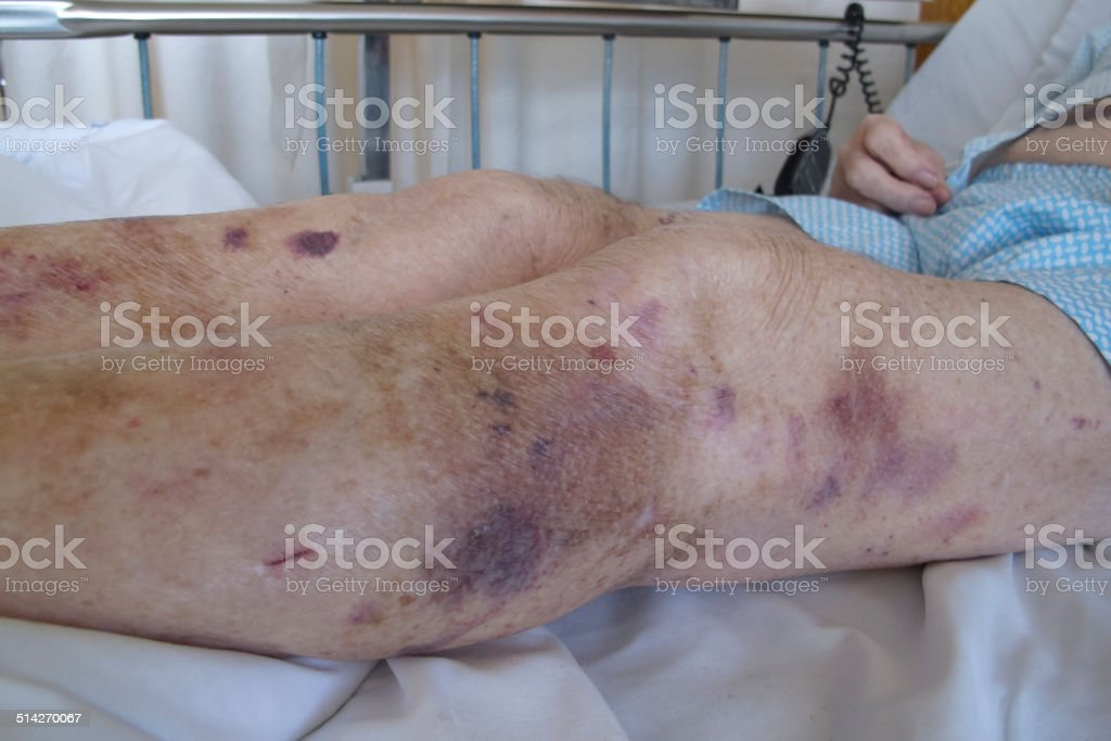 Senior man in hospital showing bruised legs stock photo