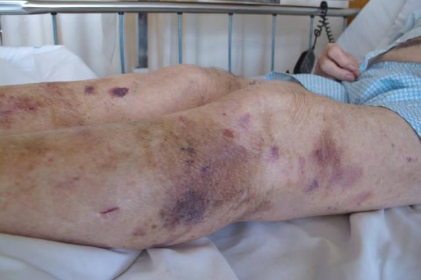 Senior man in hospital showing bruised legs stock photo