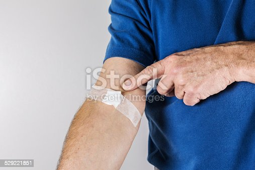 A senior man health labratory patient in a blue polo shirt has just given blood for testing. He is pointing with his finger to the white bandage tape and sterilized gauze on his arm near the inside of his elbow.