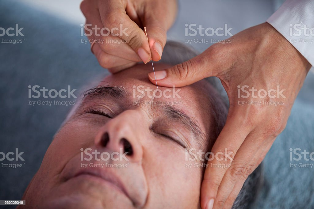 Senior man receiving head massage from physiotherapist - foto de stock
