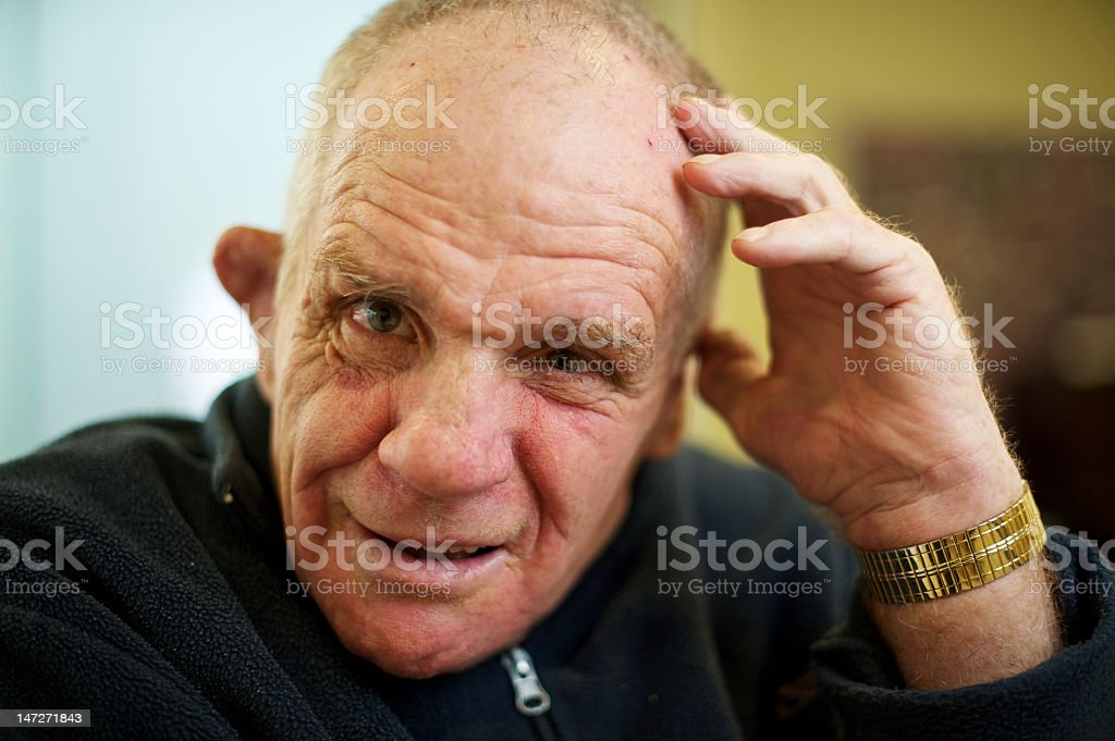 Senior man with an intellectual disability looking at the camera. stock photo