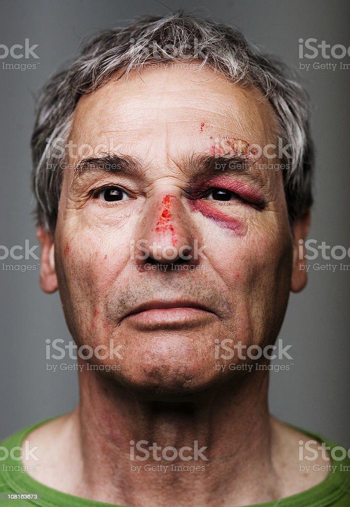 Senior Man with Bruised and Black Eye stock photo