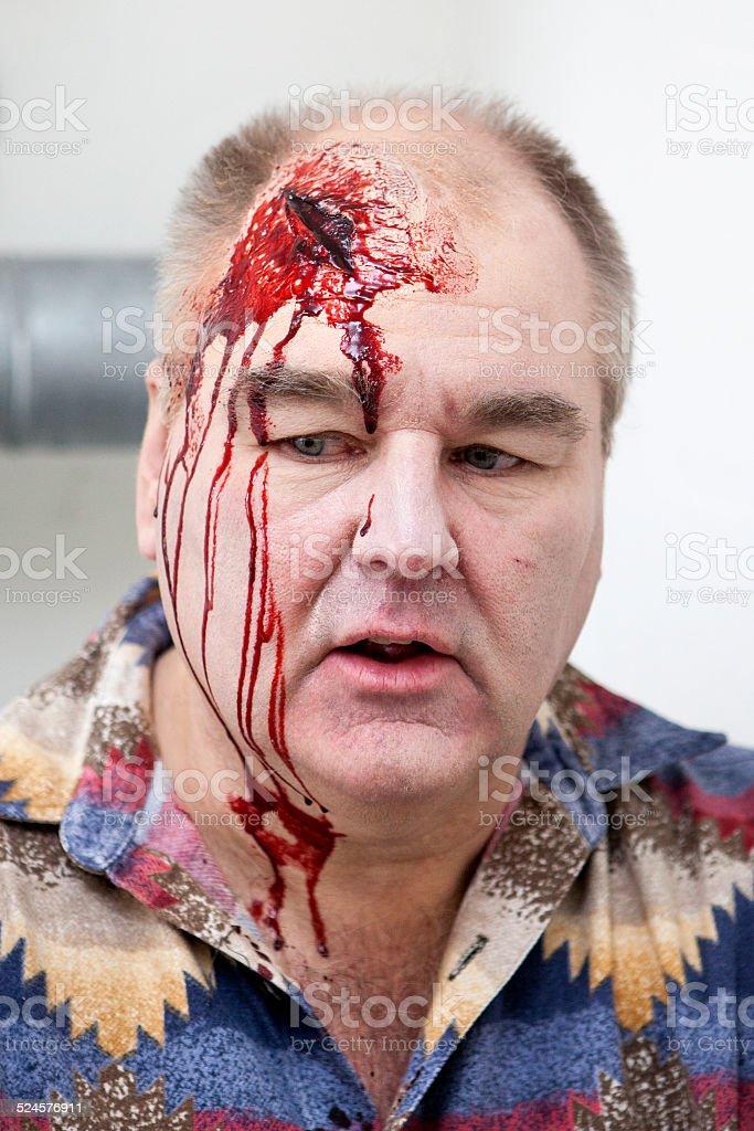 Senior man with head injury - laceration stock photo