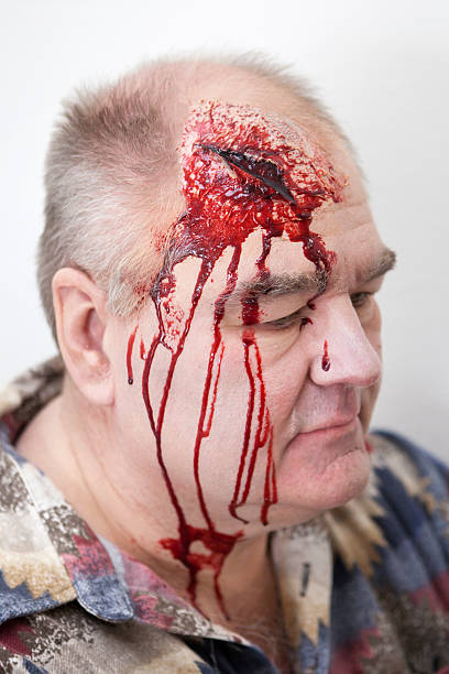 Senior man with head injury - laceration stock photo