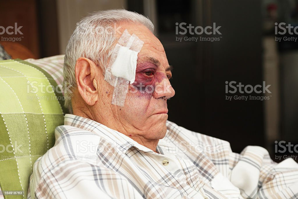 Senior Man With Injured Face and Black Eye is Unhappy stock photo
