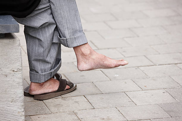 senior man's calloused feet - old man feet stock photos and pictures
