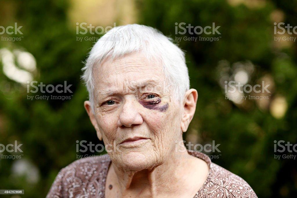 Senior with Black Eye stock photo