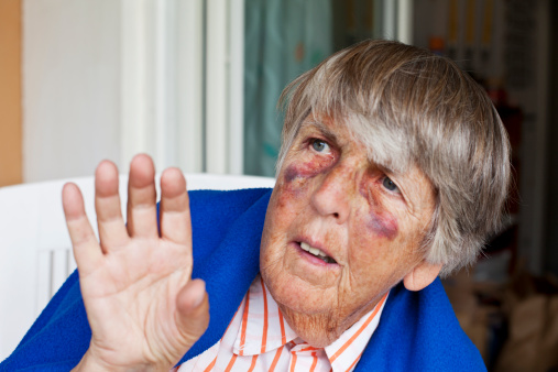 istock Senior with bruises begging for mercy 175507793