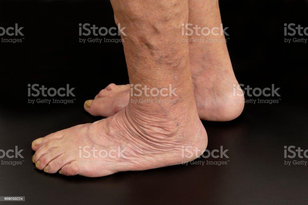 senior woman feet – Foto