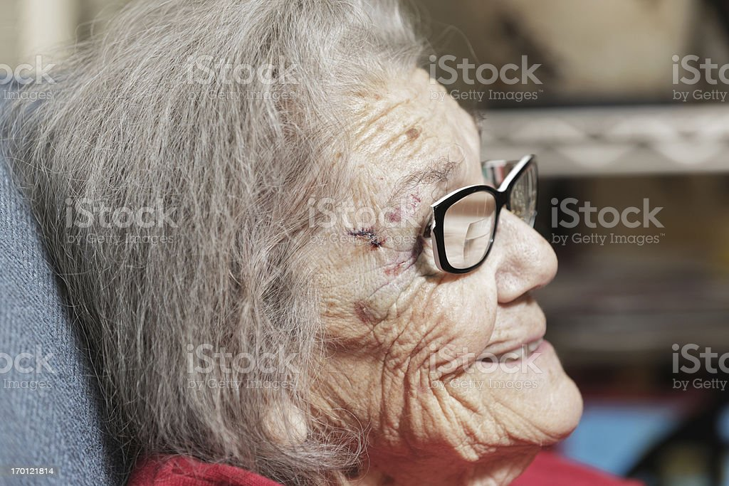 Senior Woman Head Injury stock photo