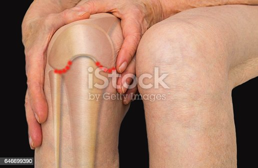 istock Senior woman holding the knee with pain 646699390