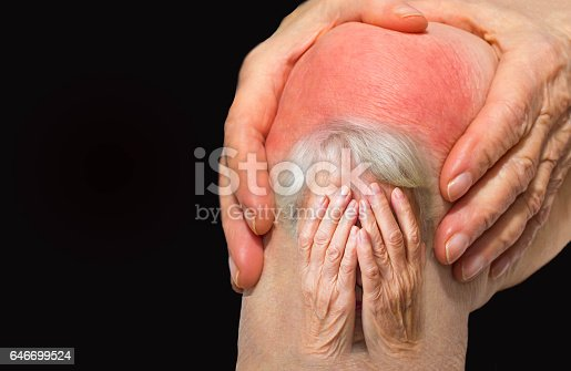 istock Senior woman holding the knee with pain 646699524
