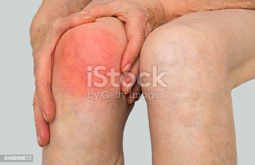 istock Senior woman holding the knee with pain 646699612