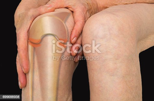 istock Senior woman holding the knee with pain 699688938
