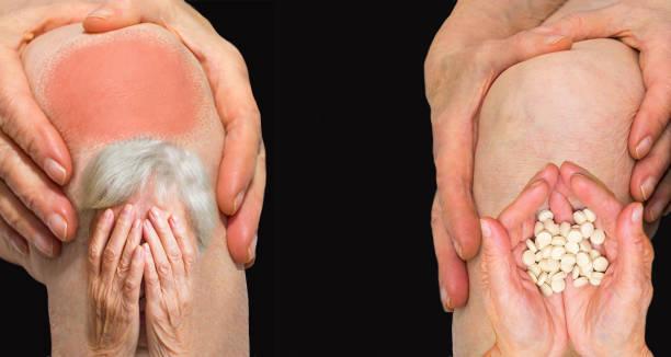 senior woman holding the knee with pain - prendersi cura del corpo foto e immagini stock