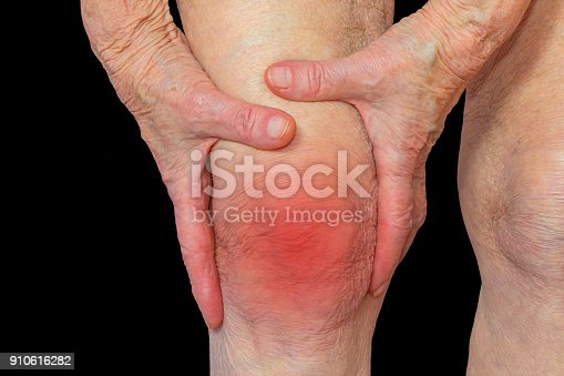 875123630 istock photo Senior woman holding the knee with pain 910616282