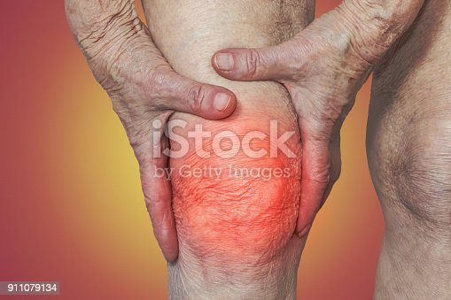 875123630 istock photo Senior woman holding the knee with pain 911079134