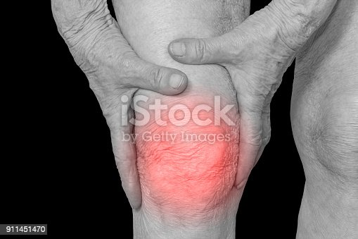 875123630 istock photo Senior woman holding the knee with pain 911451470