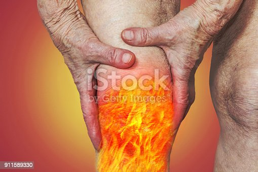 istock Senior woman holding the knee with pain 911589330