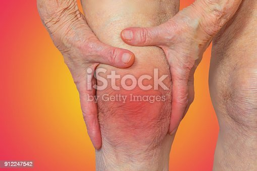 istock Senior woman holding the knee with pain 912247542