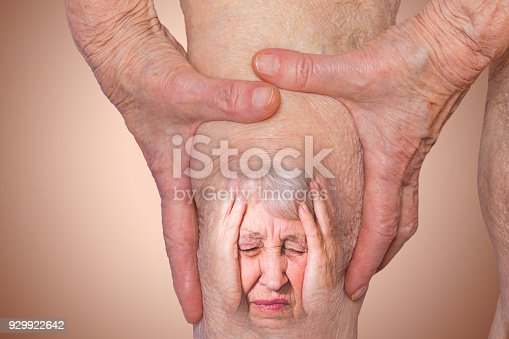 istock Senior woman holding the knee with pain 929922642